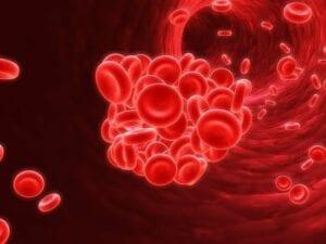 Elderly Care in Pembroke Pines FL: Anemia Symptoms