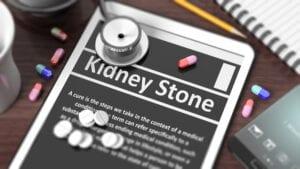 Senior Care in Pembroke Pines FL: Kidney Stones